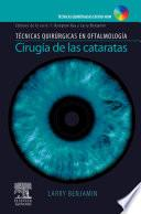Cirugia de Las Cataratas